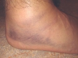 Grade 3 Ankle Sprain.  Note the loss of ankle definition from the swelling and bruising
