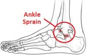 An injury to the ankle ligaments is known as a sprain