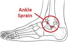 A grade 2 sprain following a twisted ankle.  The fibres are partially torn but remain intact