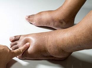 Pieds et chevilles enflés : Causes communes, symptômes, diagnostic et options de traitement