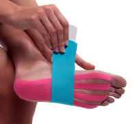Taping is often done as part of Cuboid Syndrome.  NB Taping shown here is general foot taping, not specific to Cuboid Syndrome