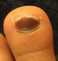Tennis toe presents with a blue/black discolouration of the nail