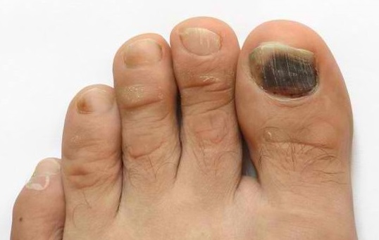 Tennis Toe & Subungual Hematoma: Symptoms, Diagnosis & Treatment
