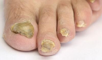 Thick Toenails: Diagnosis & Treatment - Foot Pain Explored