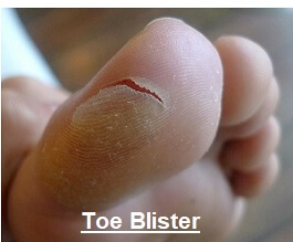 Blisters are a common cause of pain in toes