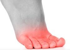 Causes courantes des douleurs articulaires des orteils