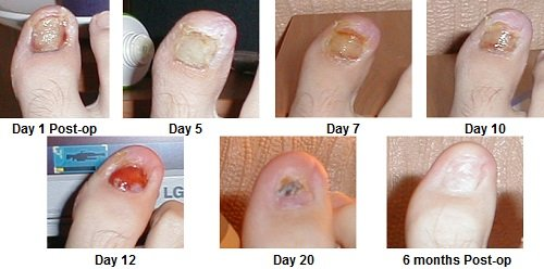 Typical recovery from toenail removal