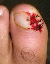 Toe nail removal for a haematoma