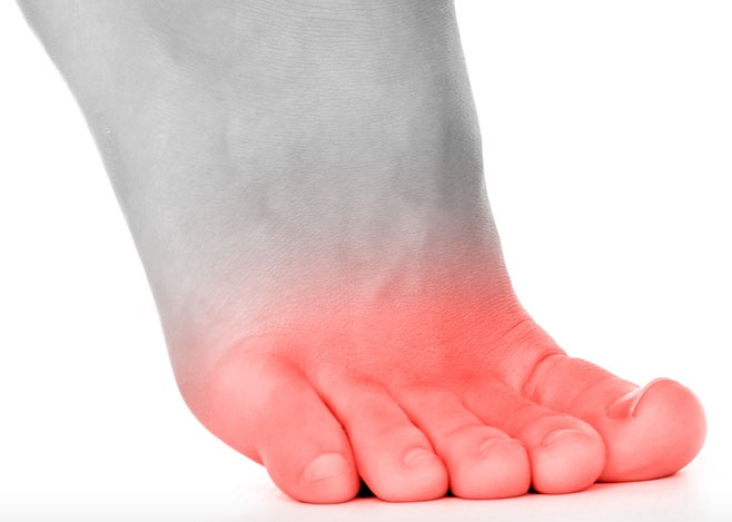 Toe Joint Pain: Causes & Treatment - Foot Pain Explored