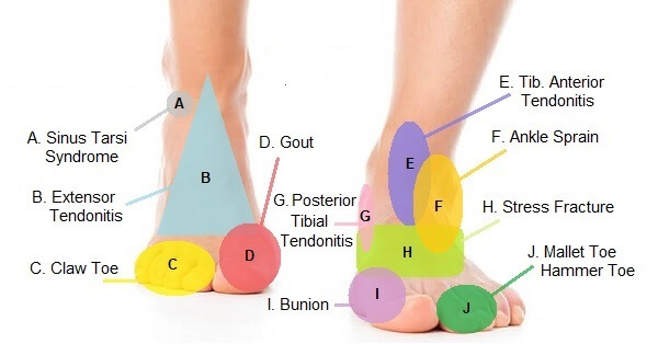 Foot Pain Diagram Why Does My Foot Hurt