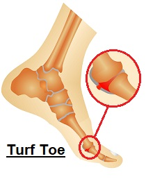 Turf Toe is a common sporting injury. Find out about the causes, symptoms, diagnosis & treatment
