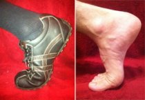 Turf Toe is caused by hyperextension of the big toe