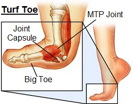 Turf Toe is a sprain of the metatarsophalangeal (MTP) joint, underneath the big toe