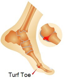 Turf Toe is a sprain of the metatarsophalangeal joint, underneath the big toe