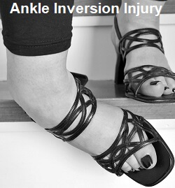 Inversion injury ankle sprains often also cause cuboid syndrome