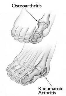 Osteoarthritis and Rheumatoid arthritis can both cause foot pain