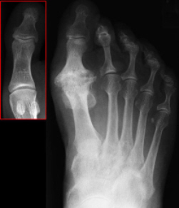 X-ray showing arthritis of the big toe.  Image in the red box shows a normal big toe x-ray.