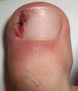An ingrown toenail develops when the curled sides of the nail push into the surrounding skin caused toe pain and inflammation