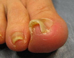 Ingrown toenail aka Unguis incarnatus or Onychocryptosis