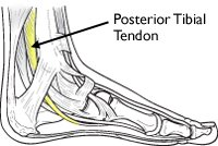 Posterior tibial tendonitis causes pain on the inner side of the ankle