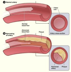 Plaque formation in blood vessels