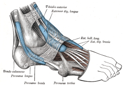 Ankle tendonitis develops when there is inflammation in the tendons from overuse