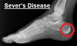 Severs Disease: the most common of heel pain causes in children. Copyright:  Nevit Dilmen