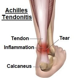 Achilles tendonitis is characterised by inflammation and/or degeneration of the achilles tendon. Image source http://bit.ly/2B6b6LN