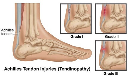 383da66bb0 Achilles Tendonitis Treatment, Causes, Symptoms & Prevention. Everything  you need to know to