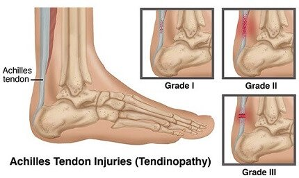 Achilles Tendonitis Treatment, Causes, Symptoms & Prevention. Everything you need to know to beat Achilles tendonitis