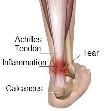 The Achilles tendon is found at the back of the leg and connects the calf muscles to the heel bone.