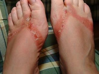 Foot Rash: Causes, Symptoms & Treatment - Foot Pain Explored