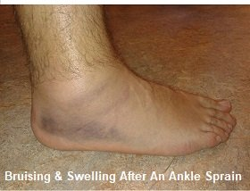 An inversion injury often results in pain on side of foot from an ankle sprain