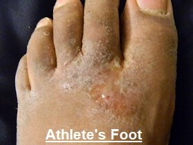 Athletes foot causing pain on bottom of foot