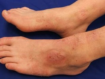 Atopic dermatitis foot rash. Find out about the causes, symptoms and best treatment options