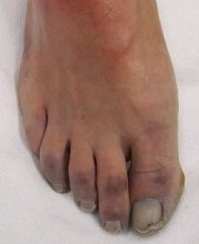 Blue toe syndrome presents with pain and discoloration of the toes due to restricted blood flow