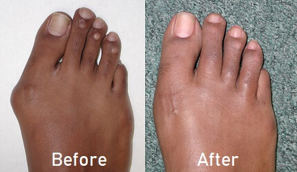 Bunion Operation: Learn about the different surgical options for bunions and which is best for you