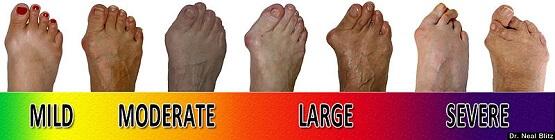 Foot Bunion progression scale