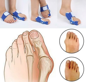 Bunion Splints: Find out the best ways to solve bunion pain and which splints will work best for you