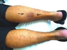 Problems in the calf muscles often cause knee, calf and foot pain.