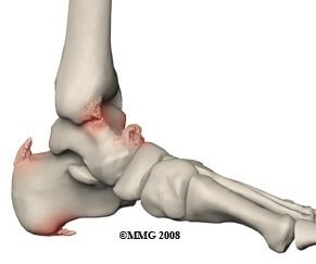 Bone Spurs are common causes of foot pain. Learn about the causes, symptoms, diagnosis & treatment options