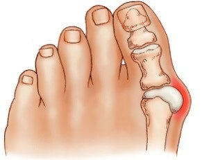 Bunions cause toe deformity. Find out about common causes, symptoms, diagnosis & treatment options including how to avoid surgery