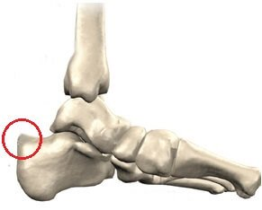Haglund's Deformity: Causes pain and swelling behind the heel. Symptoms, diagnosis & treatment options