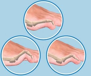 Hammer, Mallet and Claw Toe are common deformities of the toes