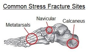 Common sites of stress fractures of the foot