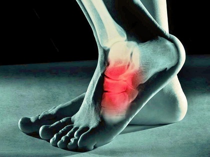 Cuboid Syndrome: Symptoms, Diagnosis & Treatment - Foot Pain