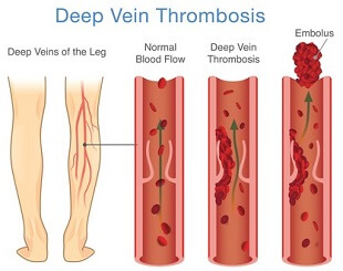 A DVT classically presents with pain, redness, swelling and heat in the calf.  Medical attention should be sought immediately
