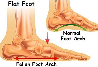 Adult Flat Foot Deformity is often caused by Posterior Tibial Tendon Dysfunction