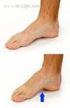 Foot arch lift exercise to strengthen the intrinsic muscles of the foot