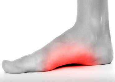 Foot Arch Pain: Causes, symptoms and treatment options for the most common causes of pain on bottom of foot